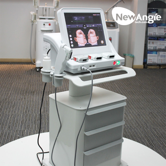 High intensity focused ultrasound for face lifting