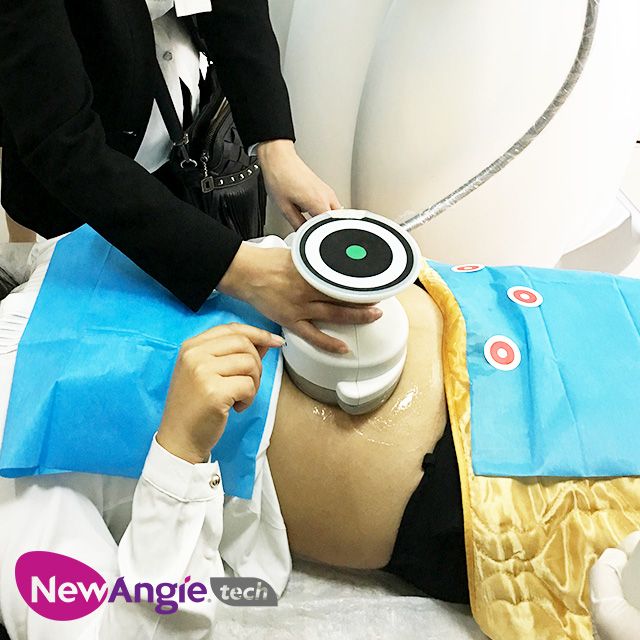 Non Invasive Cellulite Ultrashape Body Contouring