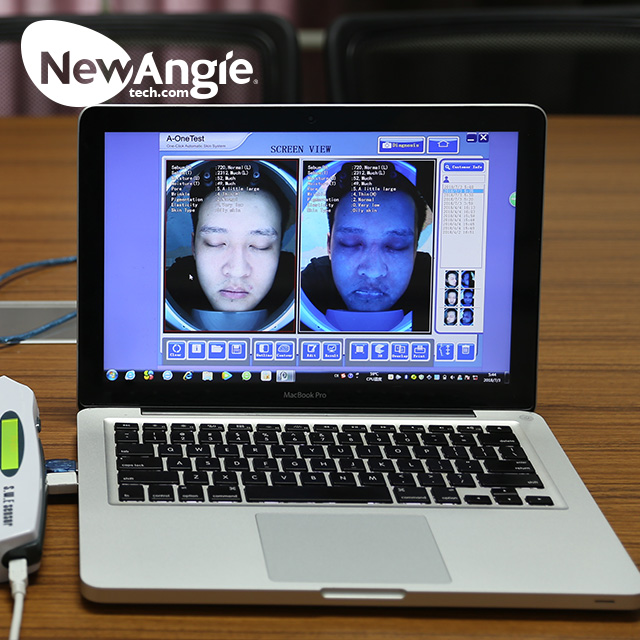 Automatic analysis facial skin analyzer machine